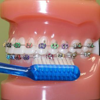 Bàn chải chăm sóc đặc biệt cho răng niềng và implant Thụy Điển