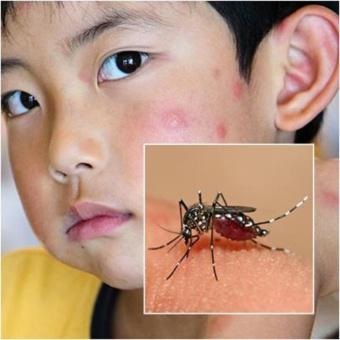 Kẹp Chống Muỗi Bằng Hương Trà Xanh Hàn Quốc Bảo Vệ Bé Yêu